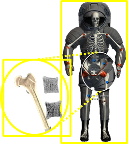 Expanded region of proximal femur simulated by DA's bone model.